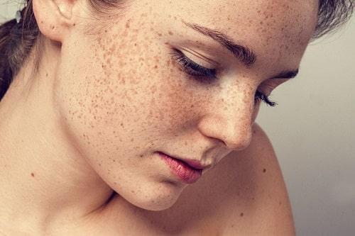 nguyên nhân nám da trong thời kỳ mang thai