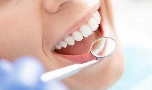 chăm sóc răng miệng từ đinh hương